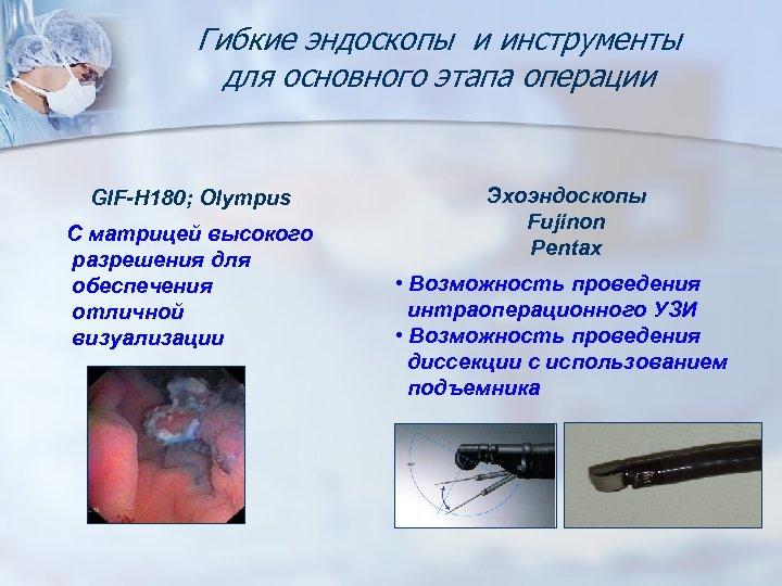 Гибкие эндоскопы и инструменты для основного этапа операции GIF-Н 180; Olympus С матрицей высокого