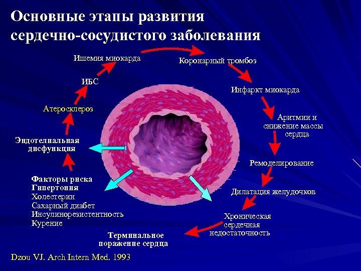 Основные этапы развития сердечно-сосудистого заболевания Ишемия миокарда ИБС Атеросклероз Эндотелиальная дисфункция Коронарный тромбоз Инфаркт