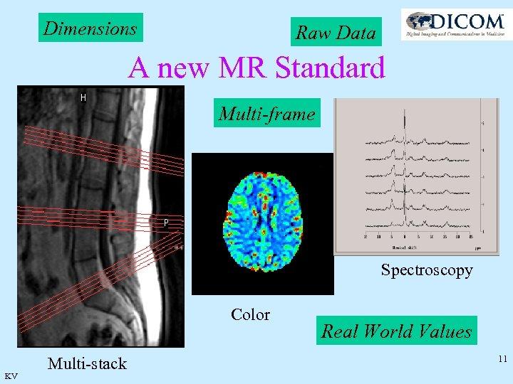 Dimensions Raw Data A new MR Standard Multi-frame Spectroscopy Color KV Multi-stack Real World
