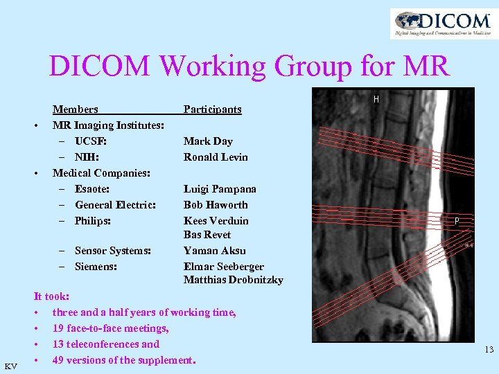 DICOM Working Group for MR • • Members MR Imaging Institutes: – UCSF: –
