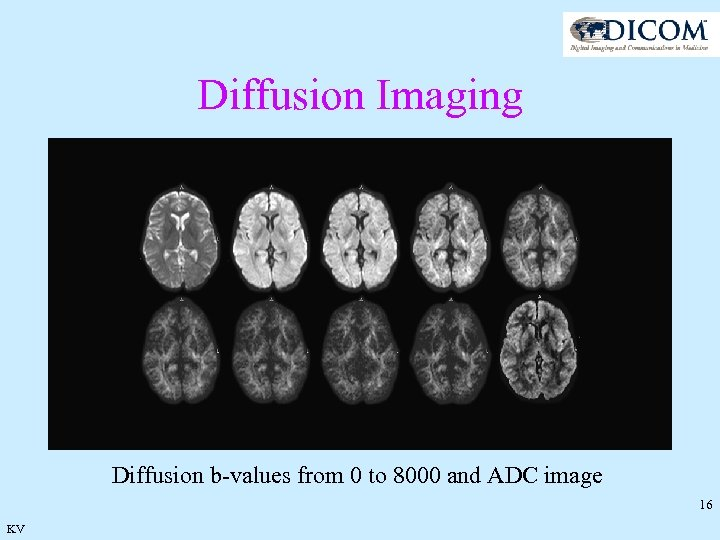 Diffusion Imaging Diffusion b-values from 0 to 8000 and ADC image 16 KV