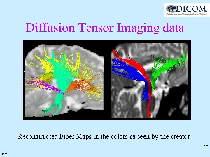 Diffusion Tensor Imaging data Reconstructed Fiber Maps in the colors as seen by the
