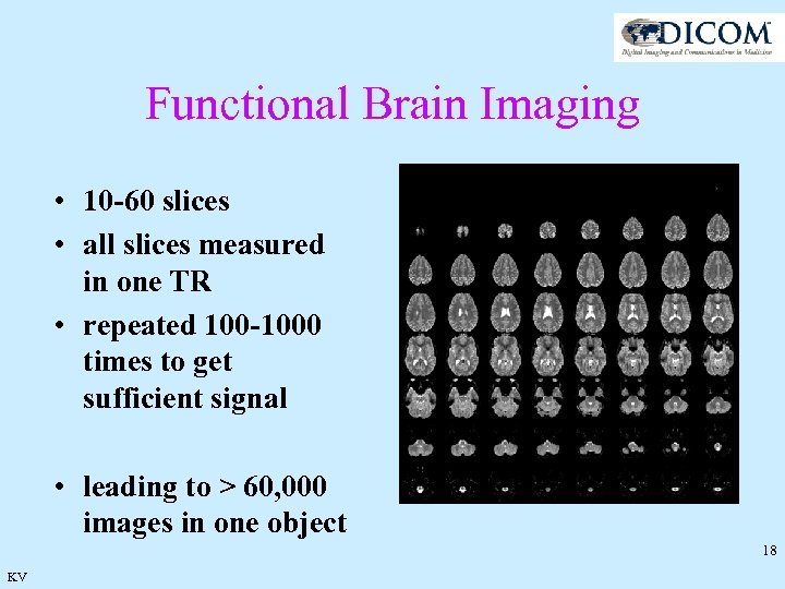 Functional Brain Imaging • 10 -60 slices • all slices measured in one TR