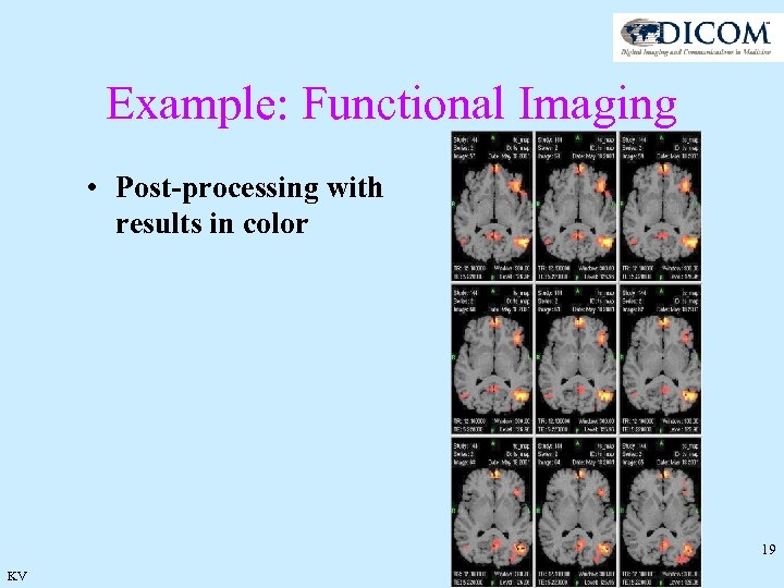 Example: Functional Imaging • Post-processing with results in color 19 KV