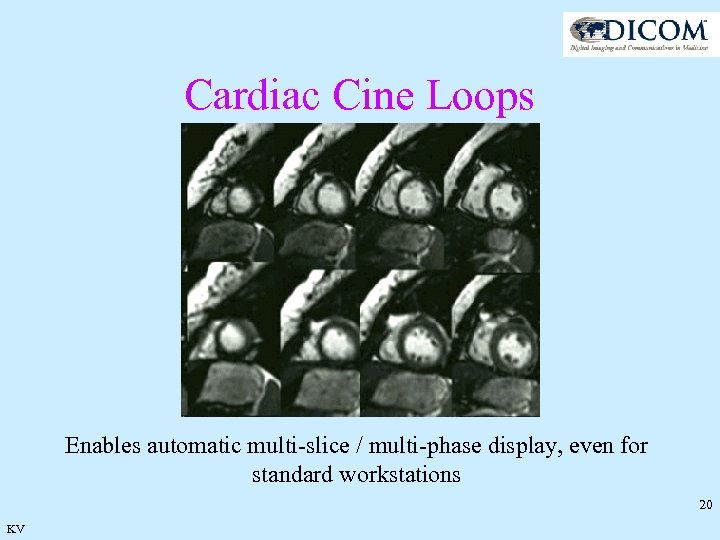 Cardiac Cine Loops Enables automatic multi-slice / multi-phase display, even for standard workstations 20