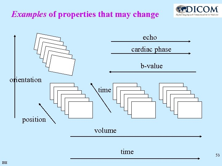 Examples of properties that may change echo cardiac phase b-value orientation time position volume