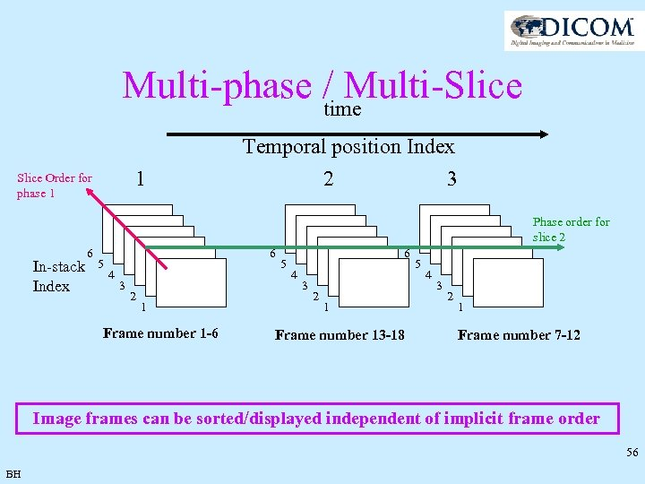 Multi-phase / Multi-Slice time 1 Slice Order for phase 1 Temporal position Index 2