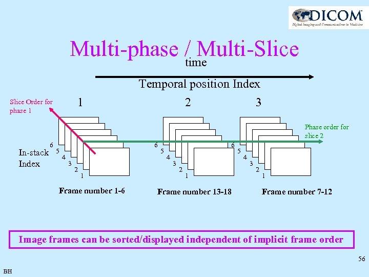 Multi-phase / Multi-Slice time 1 Slice Order for phase 1 Temporal position Index 2