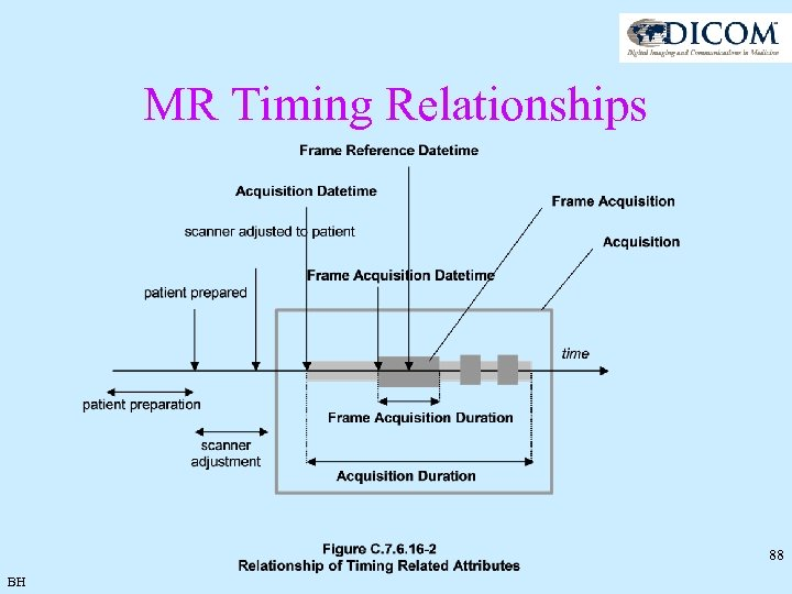 MR Timing Relationships 88 BH