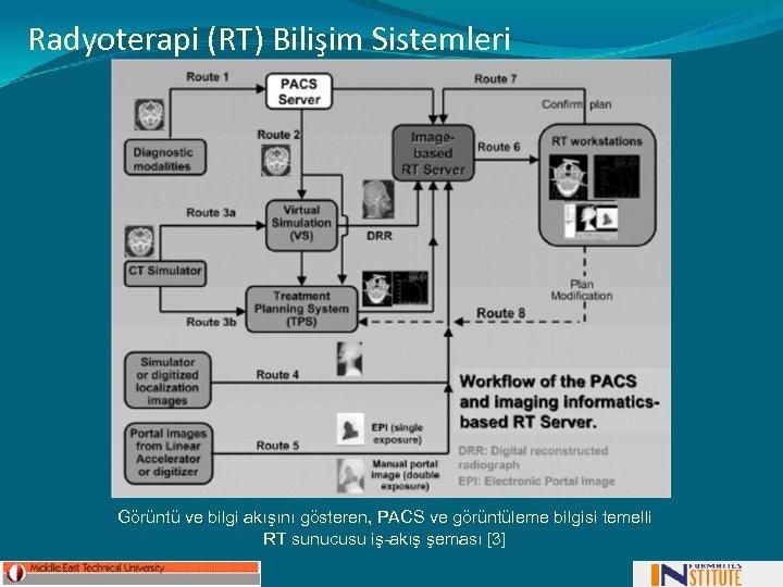 Radyoterapi (RT) Bilişim Sistemleri Görüntü ve bilgi akışını gösteren, PACS ve görüntüleme bilgisi temelli