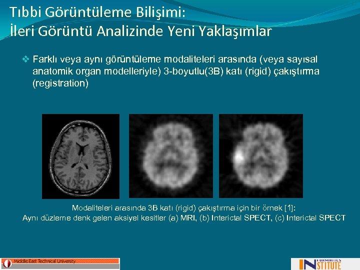 Tıbbi Görüntüleme Bilişimi: İleri Görüntü Analizinde Yeni Yaklaşımlar v Farklı veya aynı görüntüleme modaliteleri