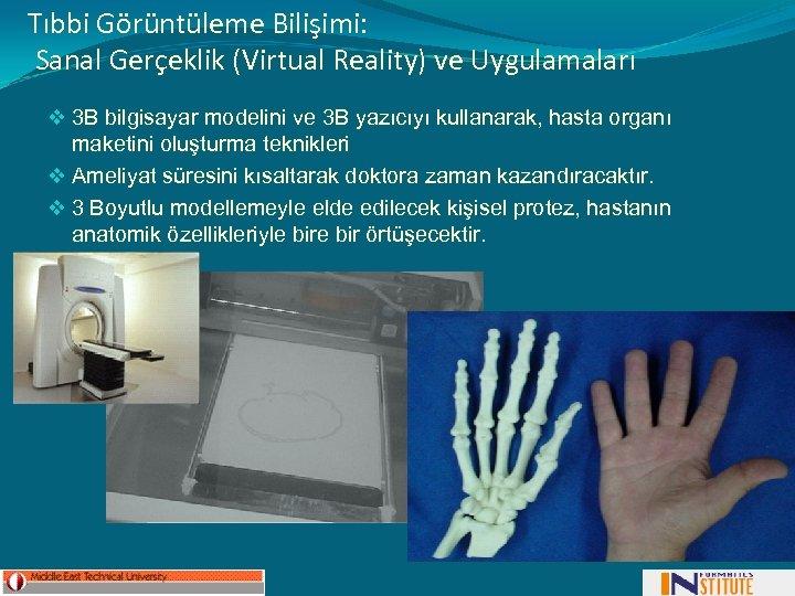 Tıbbi Görüntüleme Bilişimi: Sanal Gerçeklik (Virtual Reality) ve Uygulamaları v 3 B bilgisayar modelini