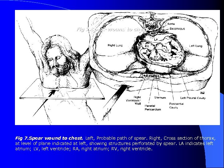 Fig 7. Spear wound to chest. Left, Probable path of spear. Right, Cross section