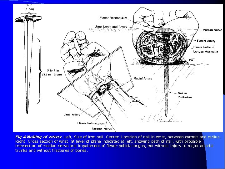 Fig 4. Nailing of wrists. Left, Size of iron nail. Center, Location of nail