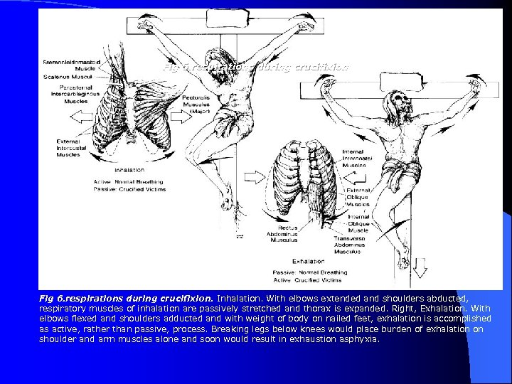 Fig 6. respirations during crucifixion. Inhalation. With elbows extended and shoulders abducted, respiratory muscles