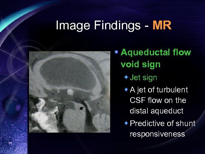 Image Findings - MR Aqueductal flow void sign Jet sign A jet of turbulent