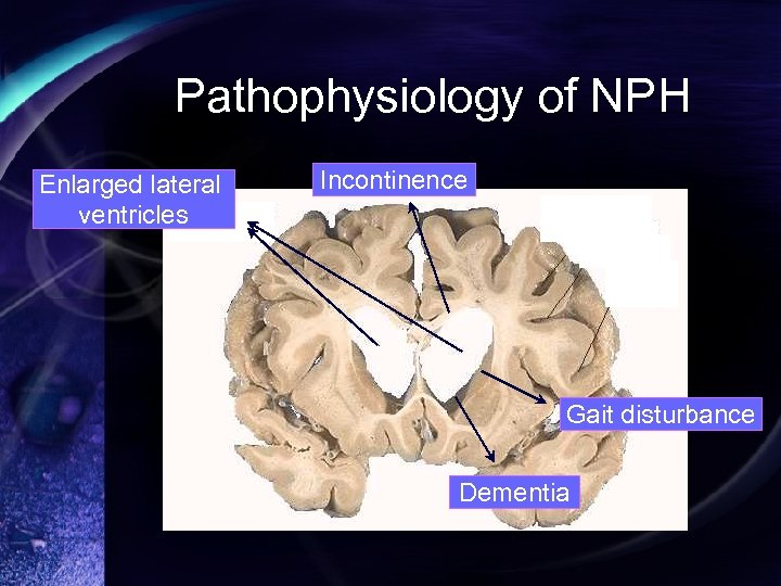 Pathophysiology of NPH Enlarged lateral ventricles Incontinence Gait disturbance Dementia