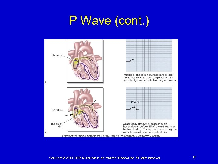 P Wave (cont. ) Copyright © 2010, 2006 by Saunders, an imprint of Elsevier