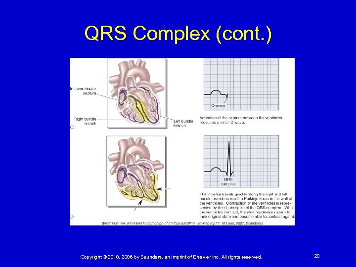 QRS Complex (cont. ) Copyright © 2010, 2006 by Saunders, an imprint of Elsevier