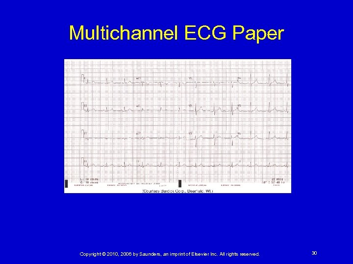 Multichannel ECG Paper Copyright © 2010, 2006 by Saunders, an imprint of Elsevier Inc.