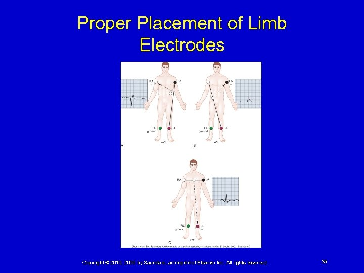 Proper Placement of Limb Electrodes Copyright © 2010, 2006 by Saunders, an imprint of