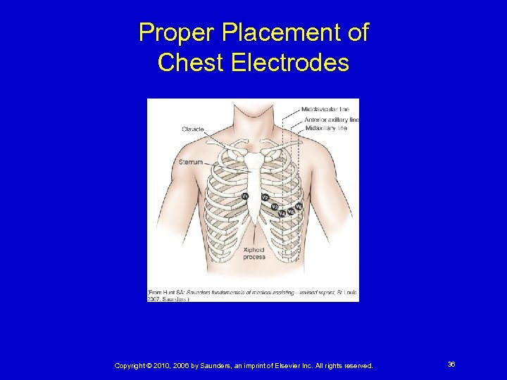 Proper Placement of Chest Electrodes Copyright © 2010, 2006 by Saunders, an imprint of