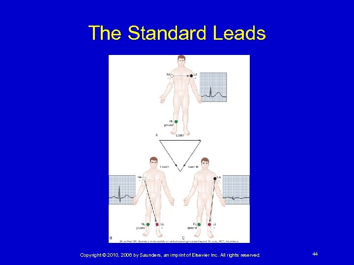 The Standard Leads Copyright © 2010, 2006 by Saunders, an imprint of Elsevier Inc.