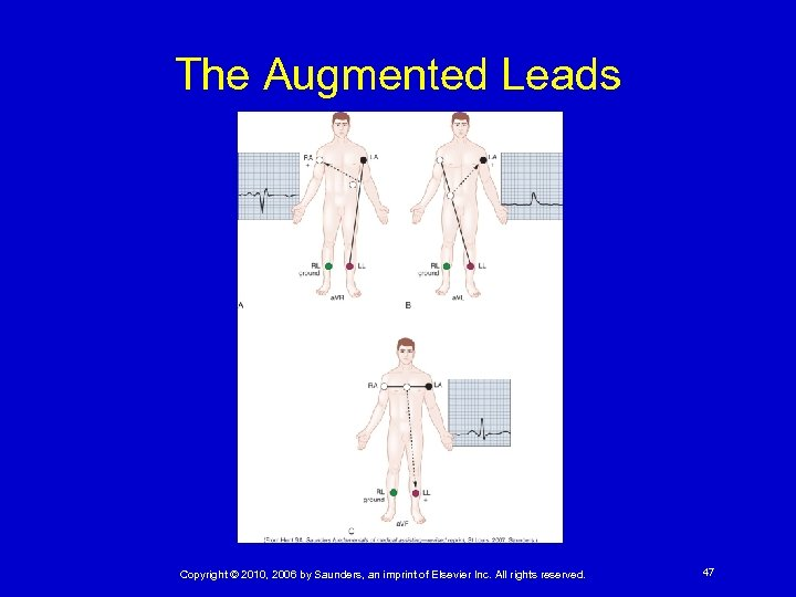 The Augmented Leads Copyright © 2010, 2006 by Saunders, an imprint of Elsevier Inc.