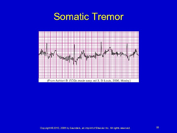 Somatic Tremor Copyright © 2010, 2006 by Saunders, an imprint of Elsevier Inc. All