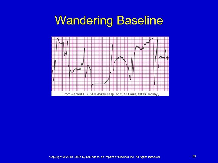 Wandering Baseline Copyright © 2010, 2006 by Saunders, an imprint of Elsevier Inc. All