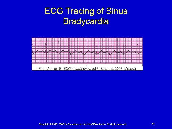ECG Tracing of Sinus Bradycardia Copyright © 2010, 2006 by Saunders, an imprint of