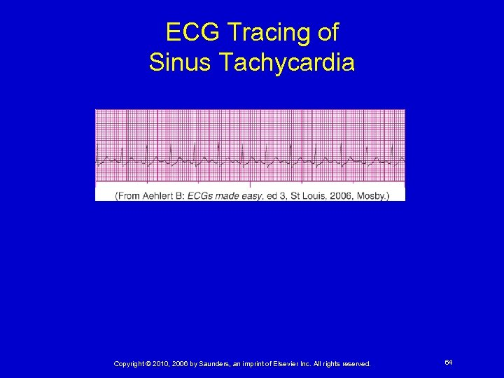 ECG Tracing of Sinus Tachycardia Copyright © 2010, 2006 by Saunders, an imprint of