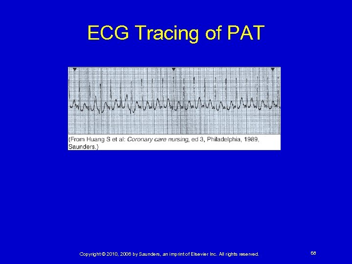 ECG Tracing of PAT Copyright © 2010, 2006 by Saunders, an imprint of Elsevier
