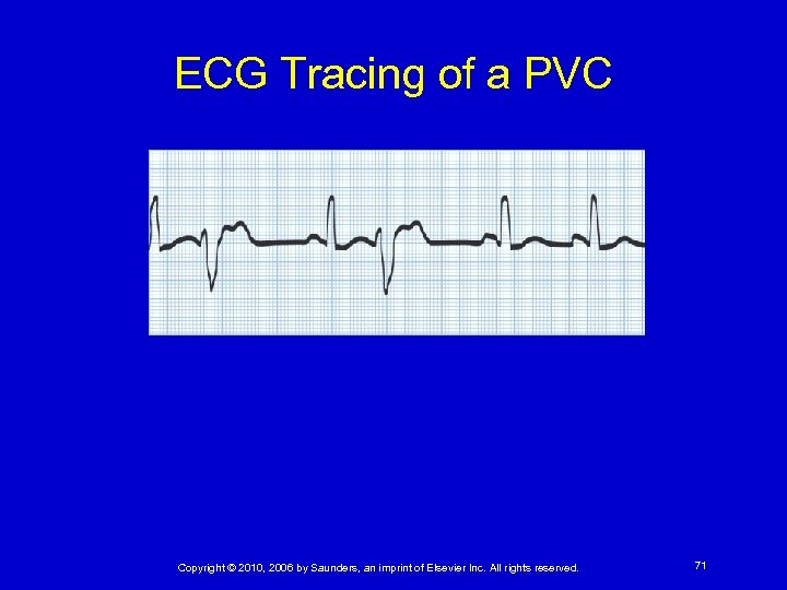 ECG Tracing of a PVC Copyright © 2010, 2006 by Saunders, an imprint of