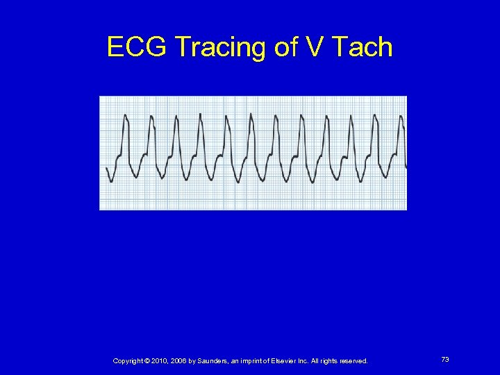 ECG Tracing of V Tach Copyright © 2010, 2006 by Saunders, an imprint of