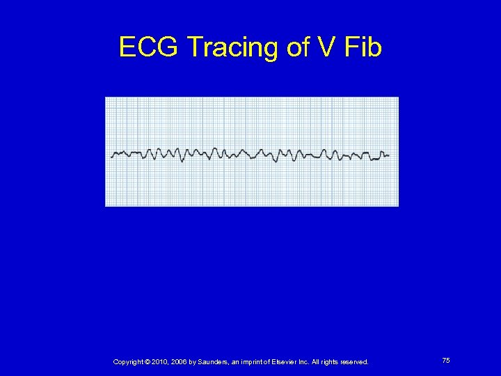 ECG Tracing of V Fib Copyright © 2010, 2006 by Saunders, an imprint of