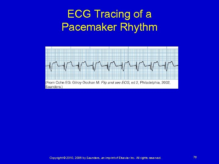 ECG Tracing of a Pacemaker Rhythm Copyright © 2010, 2006 by Saunders, an imprint
