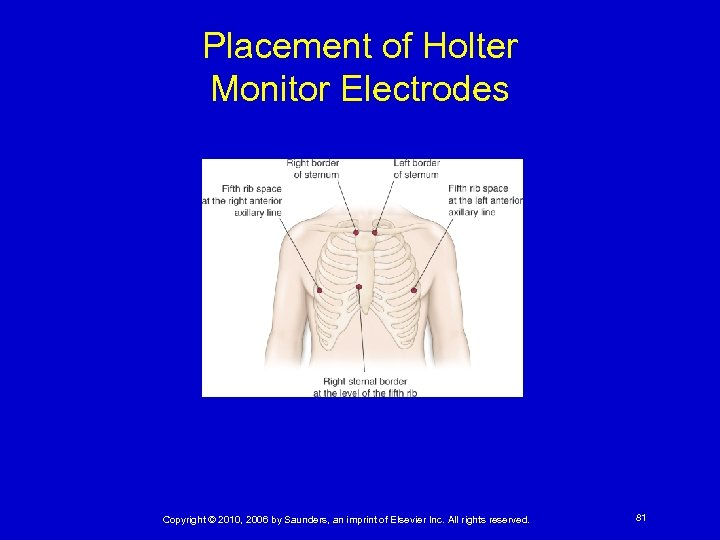 Placement of Holter Monitor Electrodes Copyright © 2010, 2006 by Saunders, an imprint of