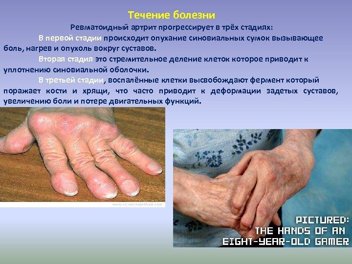 Течение болезни Ревматоидный артрит прогрессирует в трёх стадиях: В первой стадии происходит опухание синовиальных