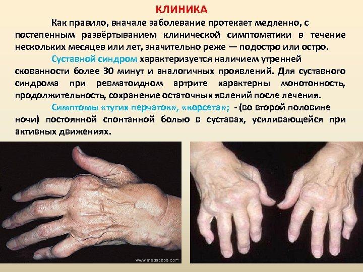 КЛИНИКА Как правило, вначале заболевание протекает медленно, с постепенным развёртыванием клинической симптоматики в течение