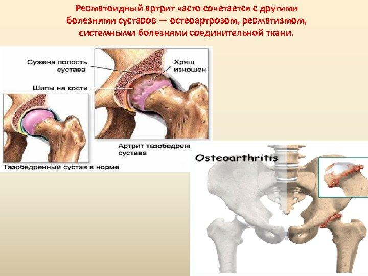 Ревматоидный артрит часто сочетается с другими болезнями суставов — остеоартрозом, ревматизмом, системными болезнями соединительной