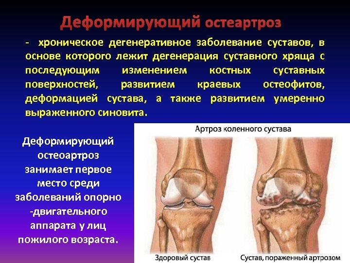 Деформирующий остеартроз хроническое дегенеративное заболевание суставов, в основе которого лежит дегенерация суставного хряща с