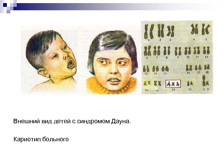 Внешний вид детей с синдромом Дауна. Кариотип больного