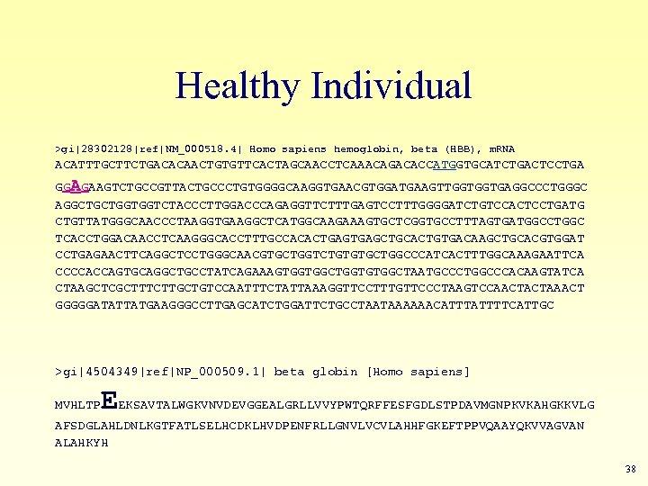Healthy Individual >gi|28302128|ref|NM_000518. 4| Homo sapiens hemoglobin, beta (HBB), m. RNA ACATTTGCTTCTGACACAACTGTGTTCACTAGCAACCTCAAACAGACACCATGGTGCATCTGACTCCTGA GGAGAAGTCTGCCGTTACTGCCCTGTGGGGCAAGGTGAACGTGGATGAAGTTGGTGGTGAGGCCCTGGGC AGGCTGCTGGTGGTCTACCCTTGGACCCAGAGGTTCTTTGAGTCCTTTGGGGATCTGTCCACTCCTGATG
