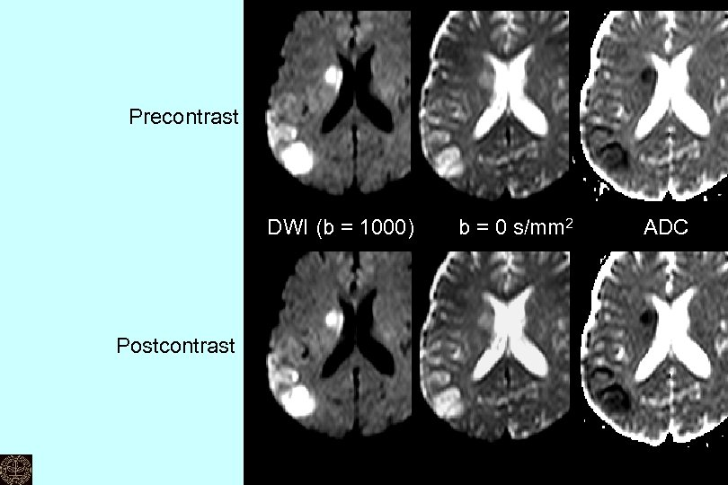 Precontrast DWI (b = 1000)   b = 0 s/mm 2 Postcontrast   ADC Can