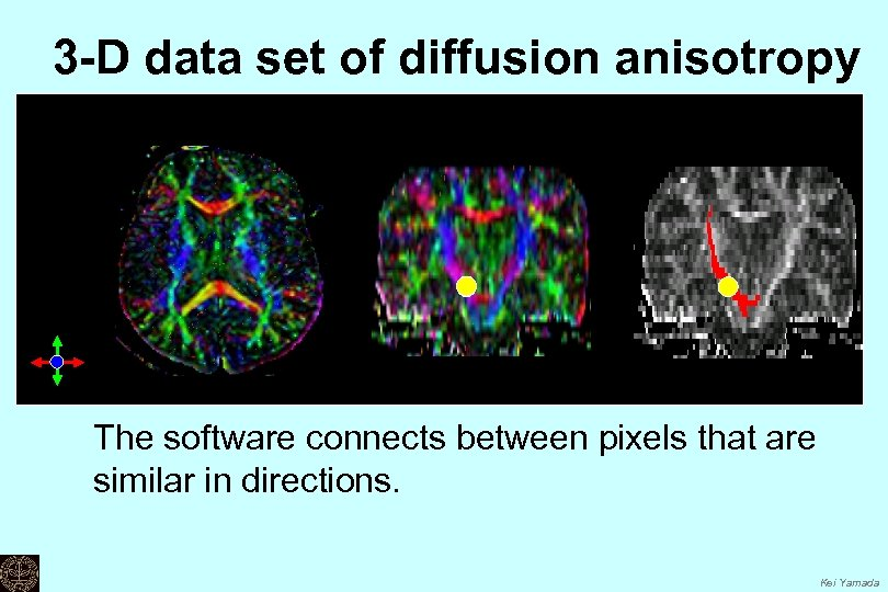 3 -D data set of diffusion anisotropy The software connects between pixels that are