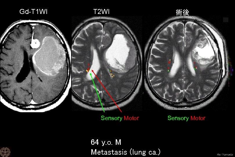 Gd-T 1 WI T 2 WI Sensory Motor 64 y. o. M Metastasis (lung