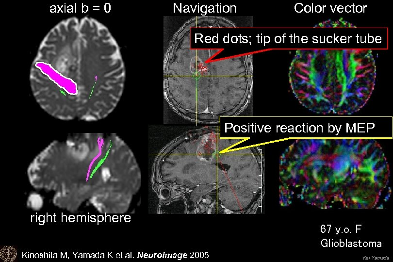 axial b = 0 Navigation Color vector Red dots; tip of the sucker tube