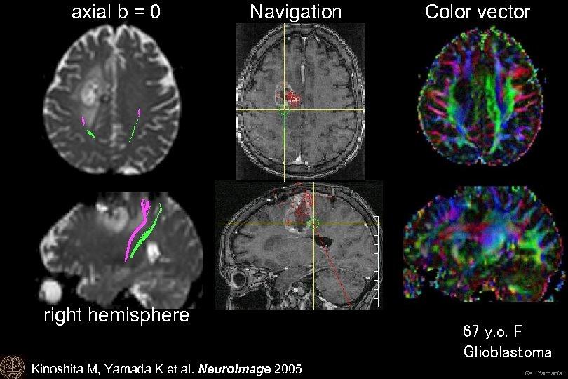 axial b = 0 Navigation right hemisphere Kinoshita M, Yamada K et al. Neuro.