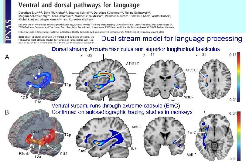 Dual stream model for language processing Dorsal stream; Arcuate fasciculus and superior longitudinal fasciculus